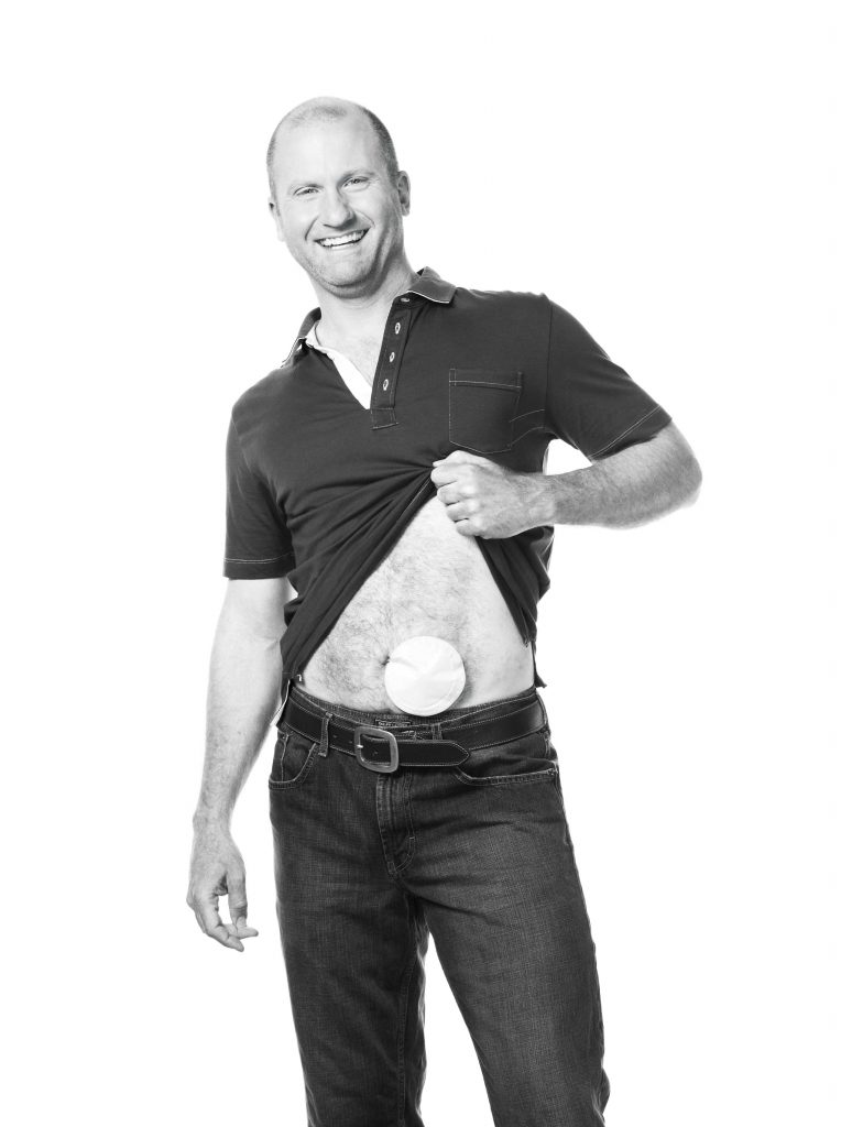 ostomy-support-group-in-setx